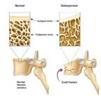 骨质酥松症的预防与治疗 (江女士,52岁)