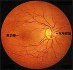 黄斑部病变 (吴先生,52岁)